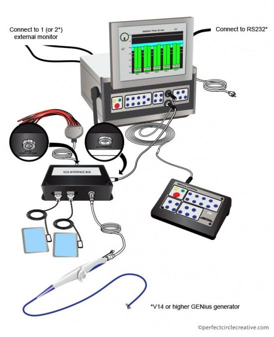 Generator Diagram illustration for Medtronic, Inc.