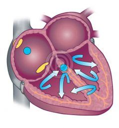 Illustration of blood flow.
