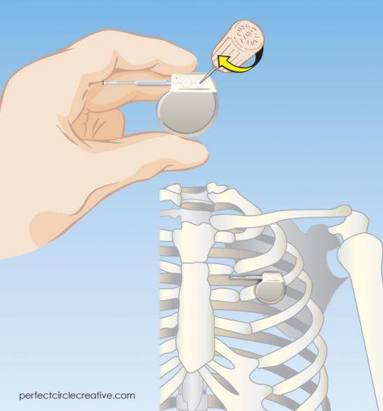 Medical Device illustration